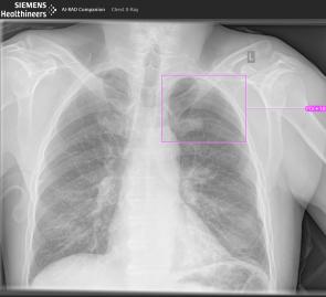 Siemens healthineers KI-Portfolio