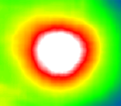 Augenkrankheiten Deep Learning