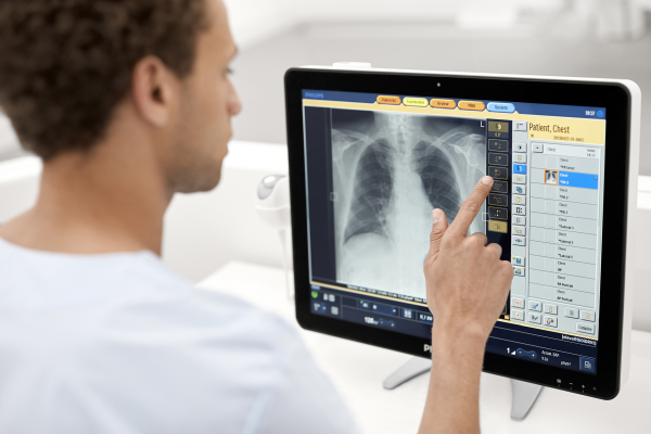 Philips KI Röntgendiagnostik