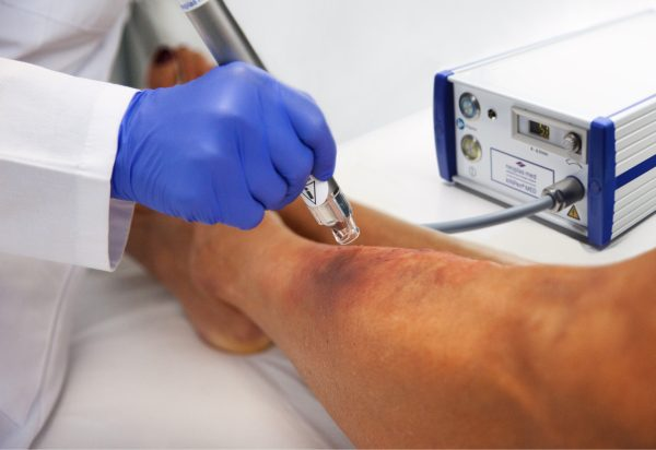 Kaltplasma Wundbehandlung neoplas